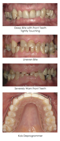 Bite Problems case displayed in the set of images at Djawdan Center for Implant and Restorative Dentistry