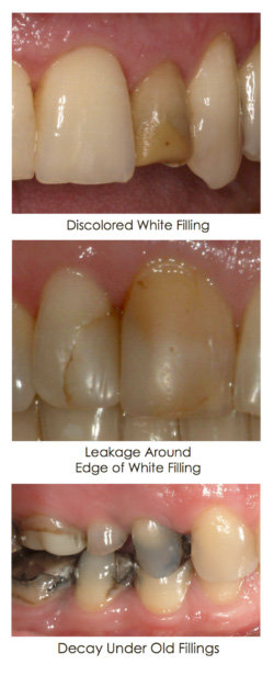 Discolored fillings displayed in set of images