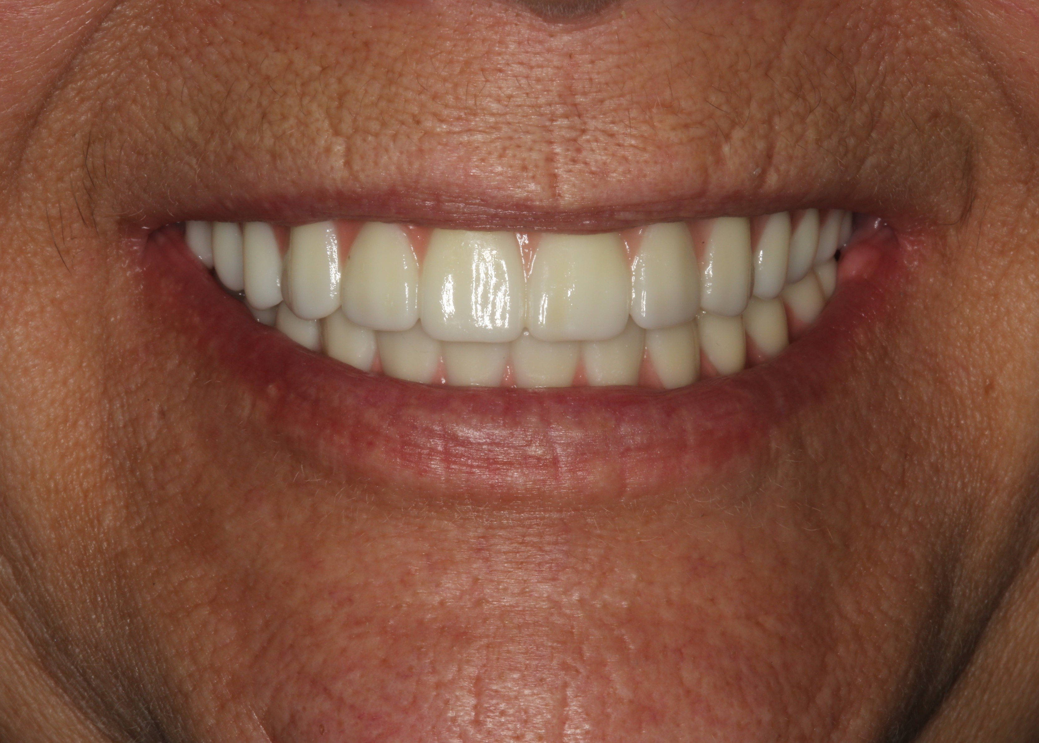 after all on 4 dental implants  travel dentistry  dental tourism  implant dentist  dental implants annapolis