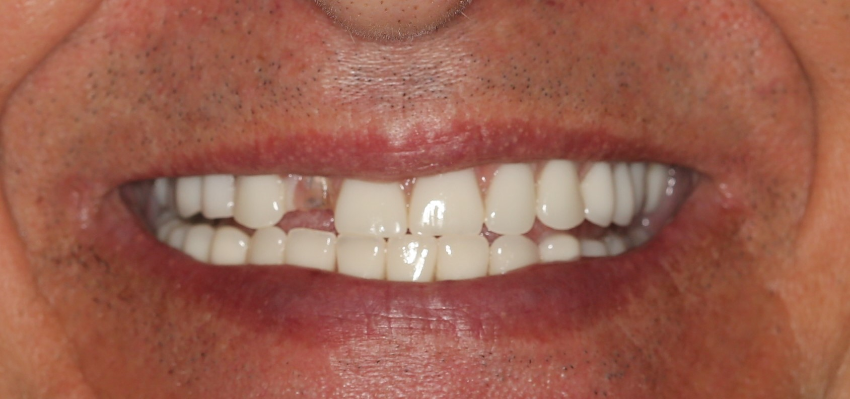 dental implants annapolis djawdan chipped tooth